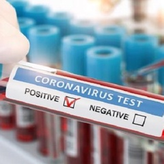 Kenya's Covid positivity rate at 8pc as 356 test positive